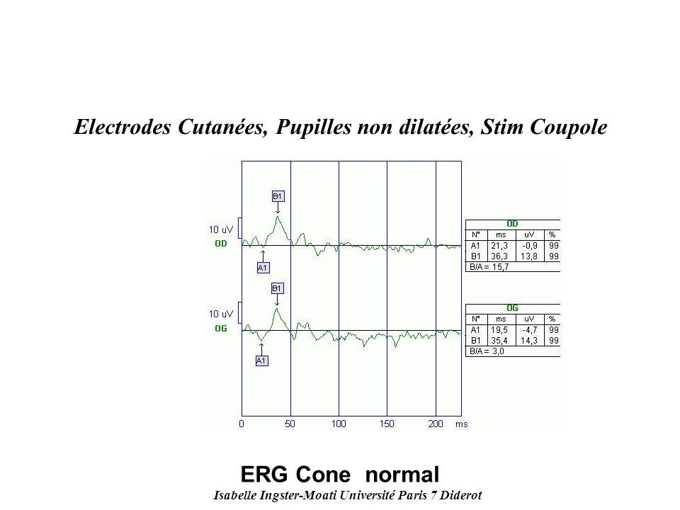 Isabelle Ingster-Moati Université Paris 7 Diderot Electrodes Cutanées, Pupilles non dilatées, Stim Coupole ERG Cone normal
