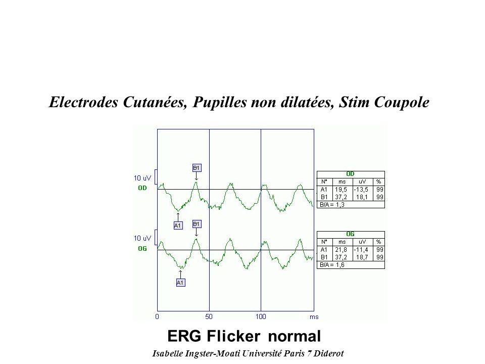 Isabelle Ingster-Moati Université Paris 7 Diderot Electrodes Cutanées, Pupilles non dilatées, Stim Coupole ERG Flicker normal