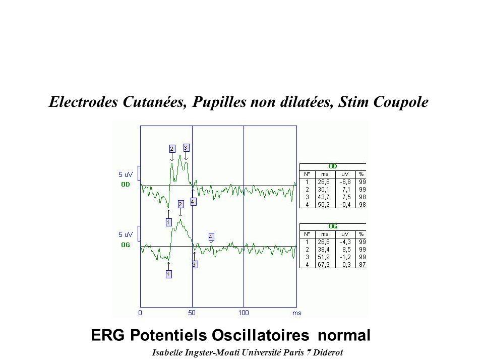 Isabelle Ingster-Moati Université Paris 7 Diderot Electrodes Cutanées, Pupilles non dilatées, Stim Coupole ERG Potentiels Oscillatoires normal