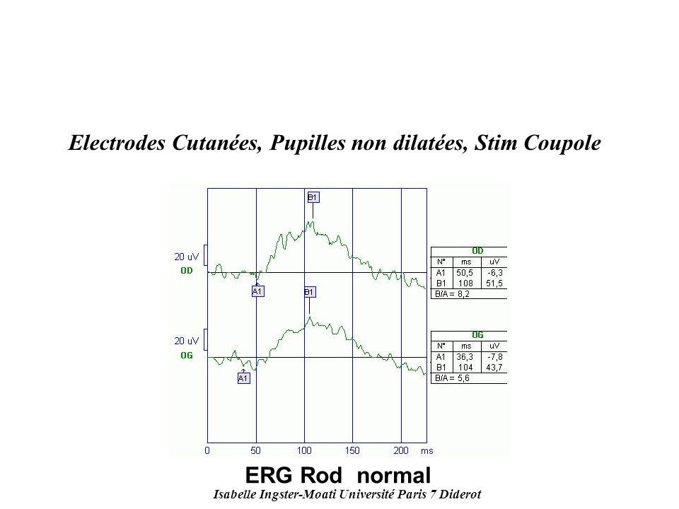 Isabelle Ingster-Moati Université Paris 7 Diderot Electrodes Cutanées, Pupilles non dilatées, Stim Coupole ERG Rod normal