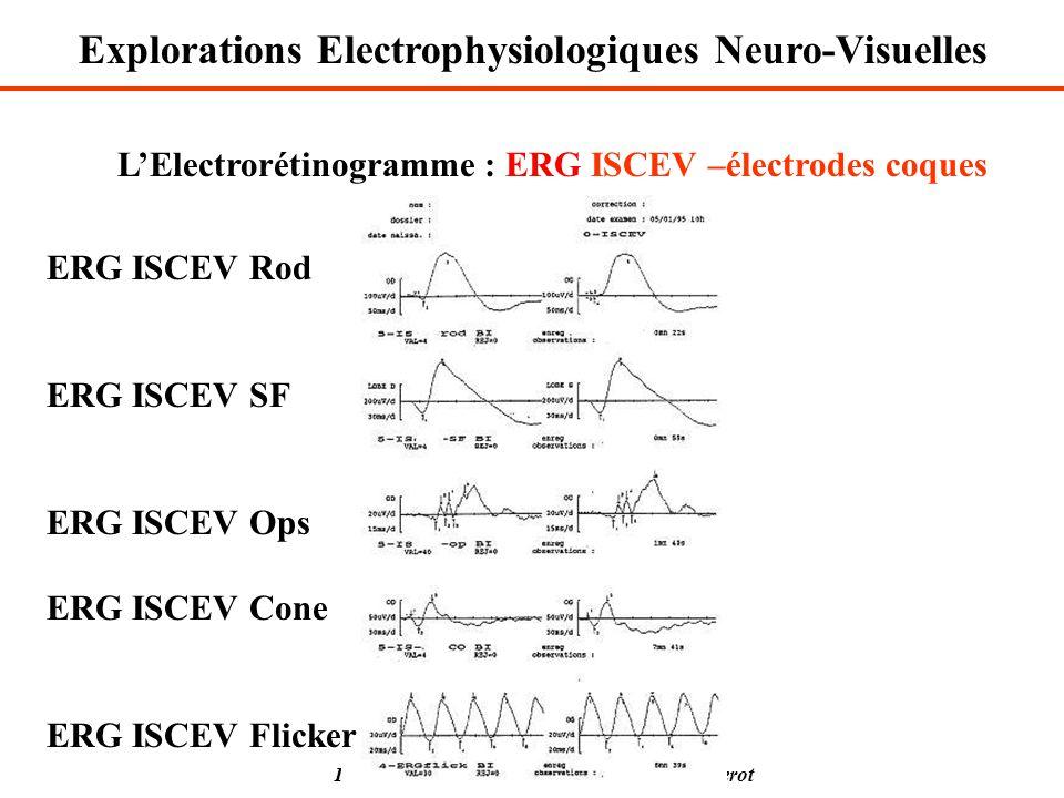 Isabelle Ingster-Moati Université Paris 7 Diderot LElectrorétinogramme : ERG ISCEV –électrodes coques ERG ISCEV Rod ERG ISCEV SF ERG ISCEV Ops ERG ISC