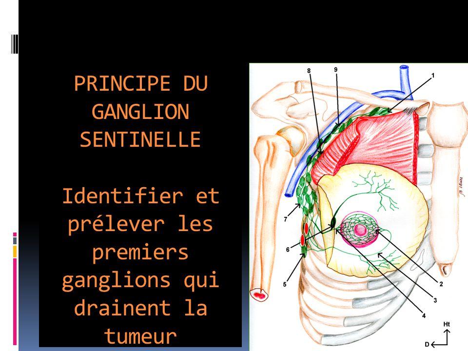 PRINCIPE DU GANGLION SENTINELLE Identifier et prélever les premiers ganglions qui drainent la tumeur 1