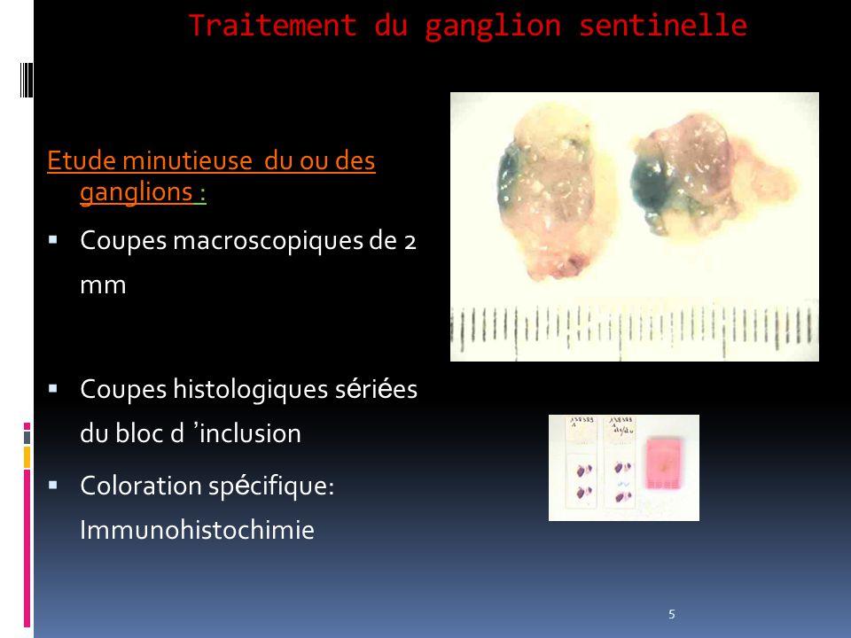 Traitement du ganglion sentinelle Etude minutieuse du ou des ganglions : Coupes macroscopiques de 2 mm Coupes histologiques s é ri é es du bloc d incl