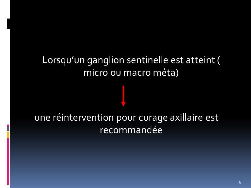 Lorsquun ganglion sentinelle est atteint ( micro ou macro méta) une réintervention pour curage axillaire est recommandée 6