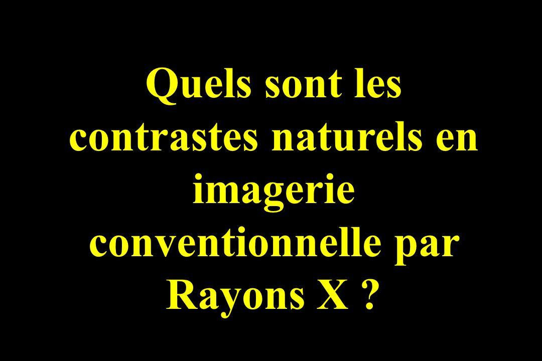 Quels sont les contrastes naturels en imagerie conventionnelle par Rayons X ?
