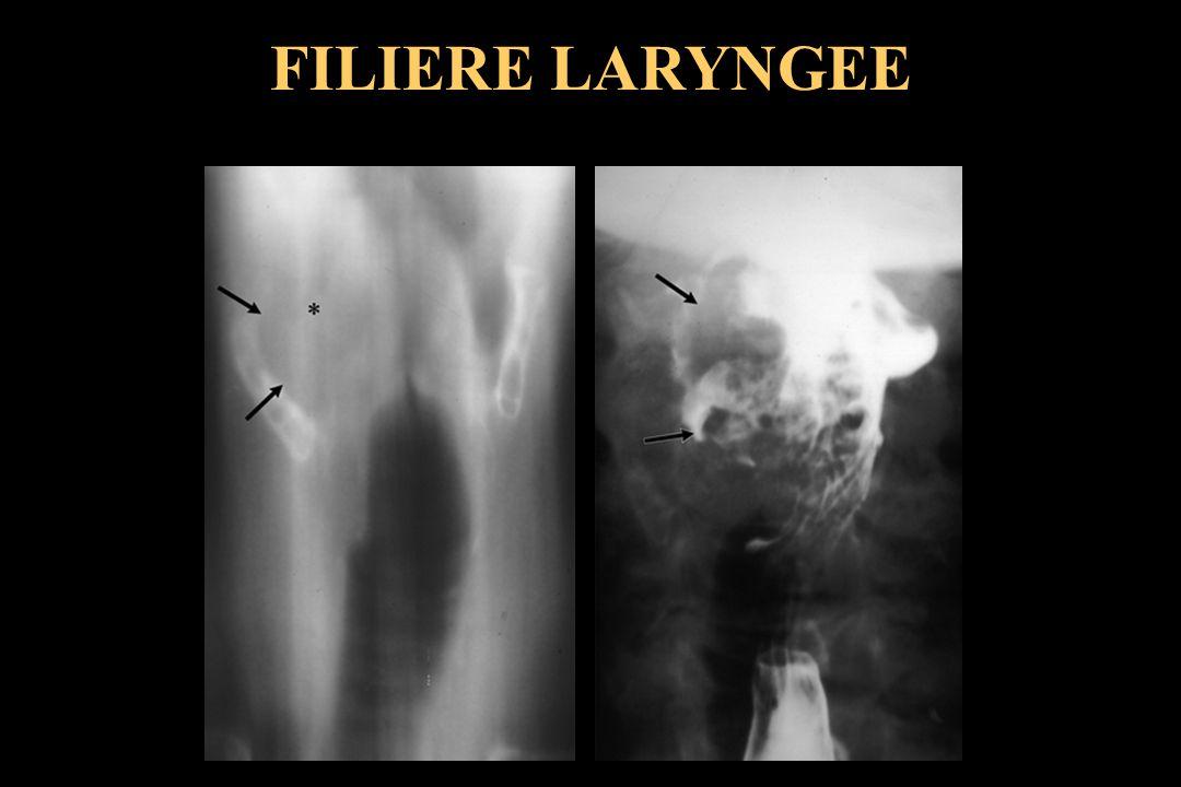 FILIERE LARYNGEE