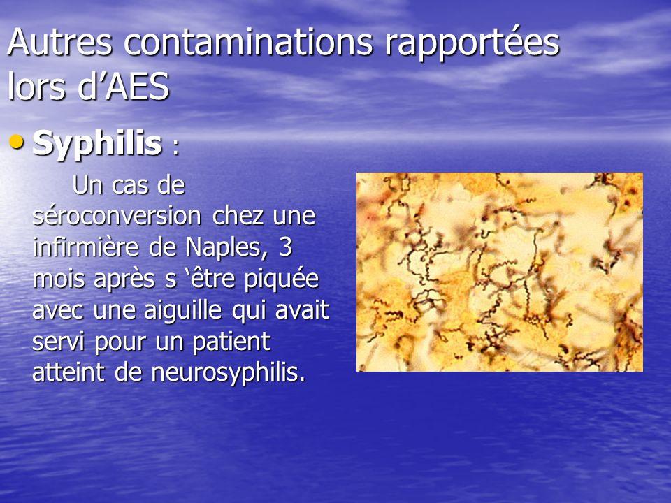 Autres contaminations rapportées lors dAES Syphilis : Syphilis : Un cas de séroconversion chez une infirmière de Naples, 3 mois après s être piquée av