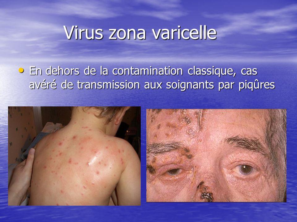 Virus zona varicelle Virus zona varicelle En dehors de la contamination classique, cas avéré de transmission aux soignants par piqûres En dehors de la