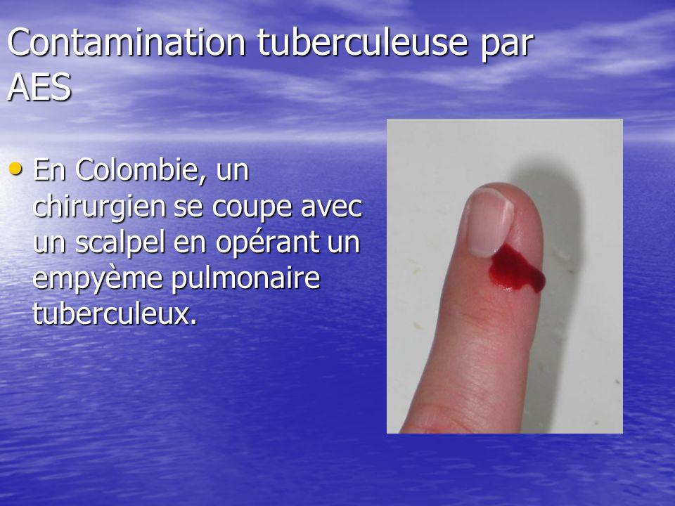 Contamination tuberculeuse par AES En Colombie, un chirurgien se coupe avec un scalpel en opérant un empyème pulmonaire tuberculeux. En Colombie, un c