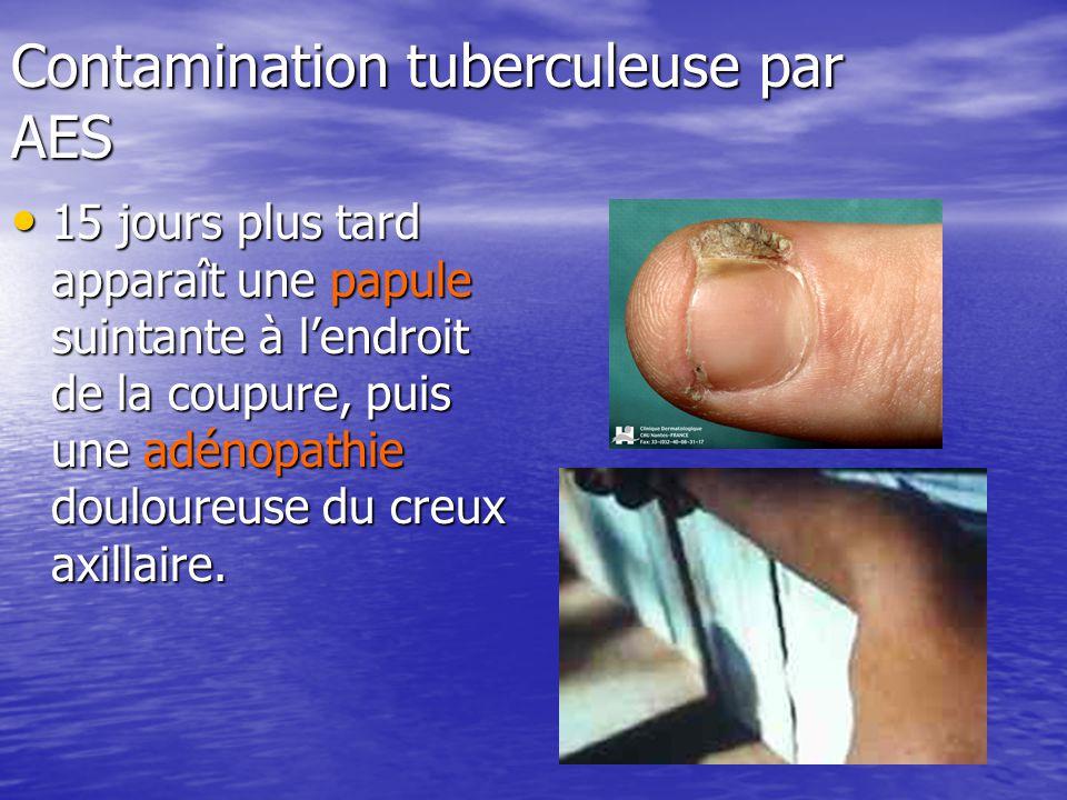 Contamination tuberculeuse par AES 15 jours plus tard apparaît une papule suintante à lendroit de la coupure, puis une adénopathie douloureuse du creu