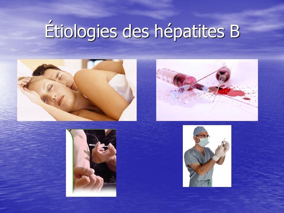 Étiologies des hépatites B Étiologies des hépatites B