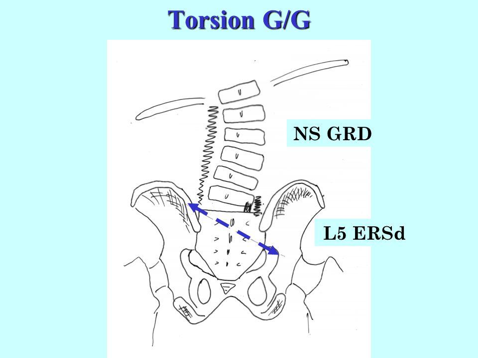 Conséquences Conséquences (torsion G/G) Donc au total, dans une torsion G/G : - le sacrum sincline à droite - le sacrum fait une rotation gauche. Donc
