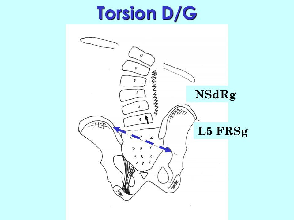 Conséquences Conséquences (torsion D/G) Au total, dans une torsion D/G : - le sacrum sincline à gauche - le sacrum fait une rotation droite. Ladaptati