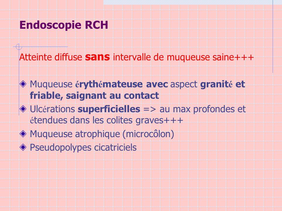 Endoscopie RCH Atteinte diffuse sans intervalle de muqueuse saine+++ Muqueuse é ryth é mateuse avec aspect granit é et friable, saignant au contact Ul