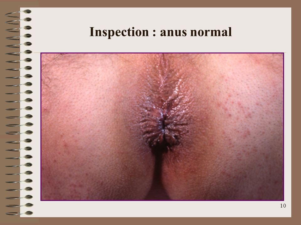10 Inspection : anus normal