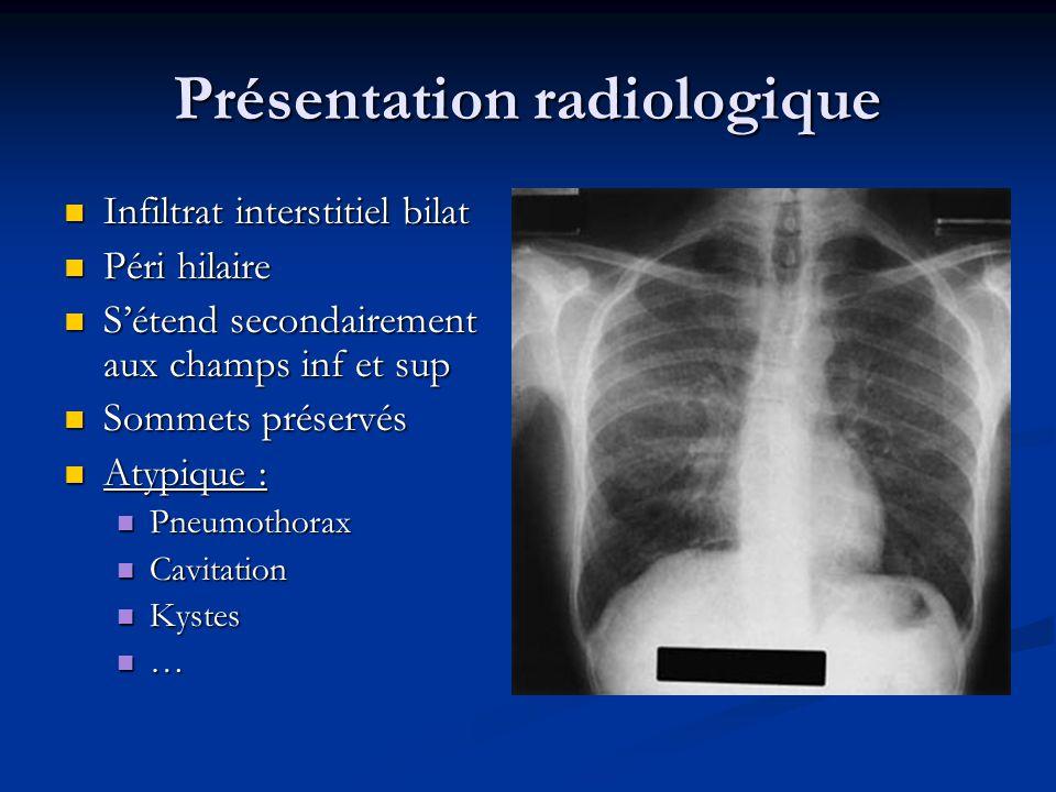 Présentation radiologique Infiltrat interstitiel bilat Infiltrat interstitiel bilat Péri hilaire Péri hilaire Sétend secondairement aux champs inf et