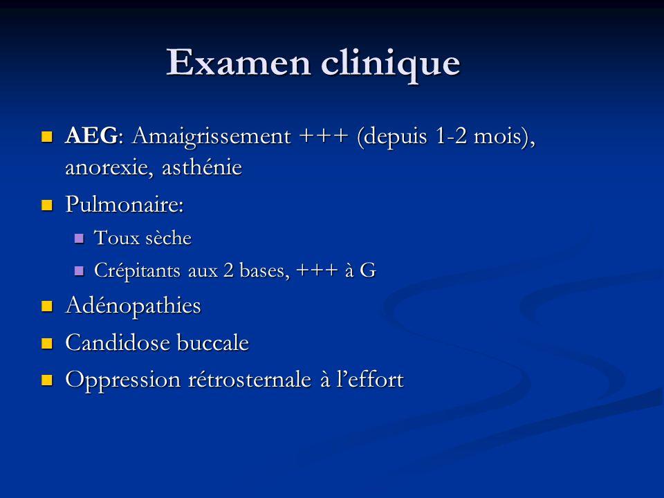 Examen clinique AEG: Amaigrissement +++ (depuis 1-2 mois), anorexie, asthénie AEG: Amaigrissement +++ (depuis 1-2 mois), anorexie, asthénie Pulmonaire
