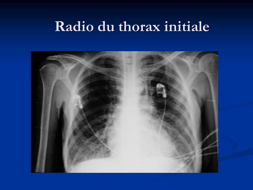 Radio du thorax initiale