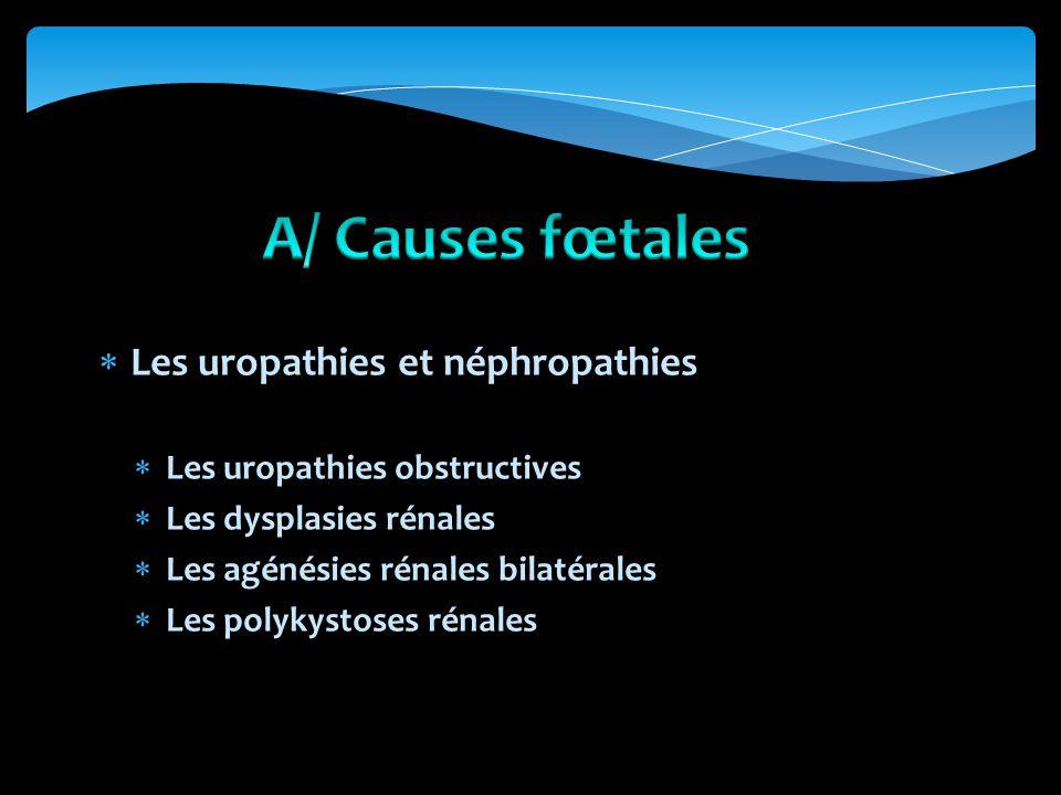 Les uropathies et néphropathies Les uropathies obstructives Les dysplasies rénales Les agénésies rénales bilatérales Les polykystoses rénales