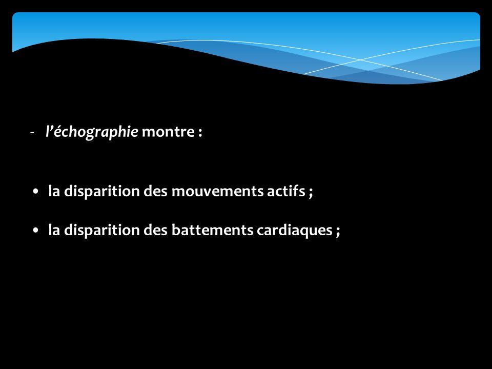 -léchographie montre : la disparition des mouvements actifs ; la disparition des battements cardiaques ;