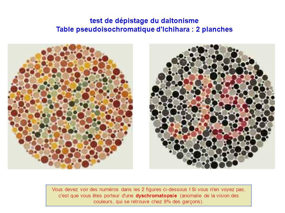 test de dépistage du daltonisme Table pseudoisochromatique d Ichihara : 2 planches Vous devez voir des numéros dans les 2 figures ci-dessous .