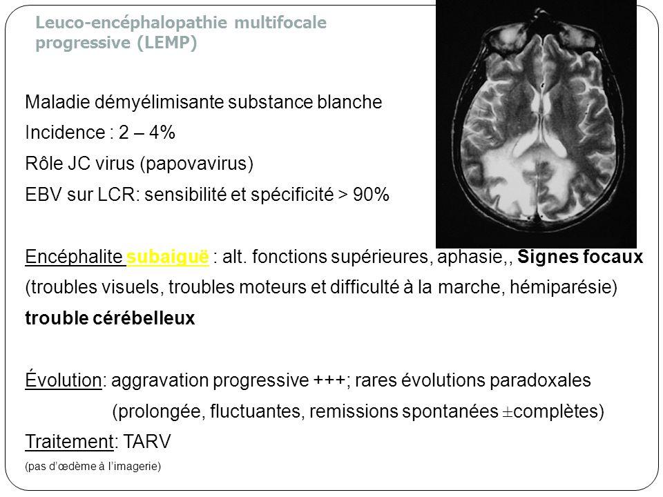 Leuco-encéphalopathie multifocale progressive (LEMP) Maladie démyélimisante substance blanche Incidence : 2 – 4% Rôle JC virus (papovavirus) EBV sur L