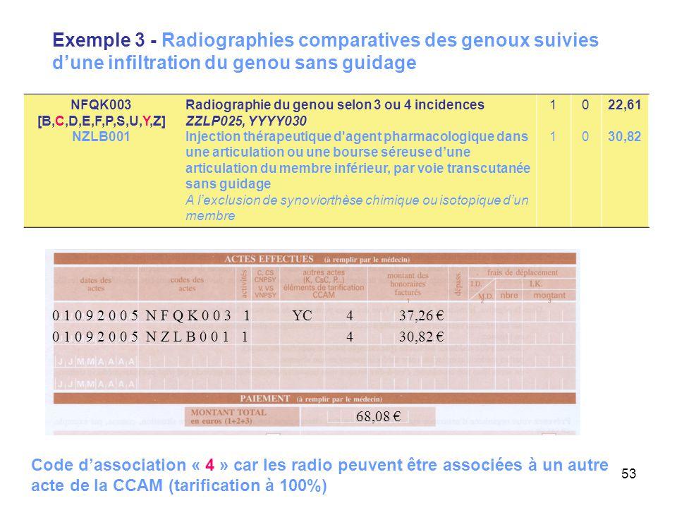 53 Exemple 3 - Radiographies comparatives des genoux suivies d'une infiltration du genou sans guidage 0 1 0 9 2 0 0 5 N Z L B 0 0 1 1 4 30,82 € 68,08