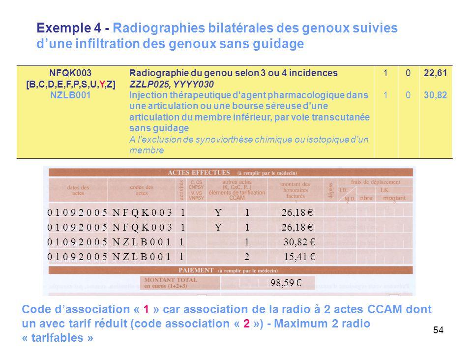 54 Exemple 4 - Radiographies bilatérales des genoux suivies d'une infiltration des genoux sans guidage 0 1 0 9 2 0 0 5 N Z L B 0 0 1 1 1 30,82 € 98,59