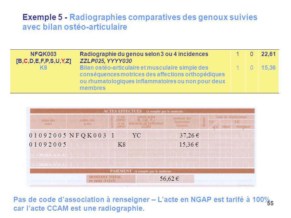 55 Exemple 5 - Radiographies comparatives des genoux suivies avec bilan ostéo-articulaire 0 1 0 9 2 0 0 5 K8 15,36 € 56,62 € 0 1 0 9 2 0 0 5 N F Q K 0