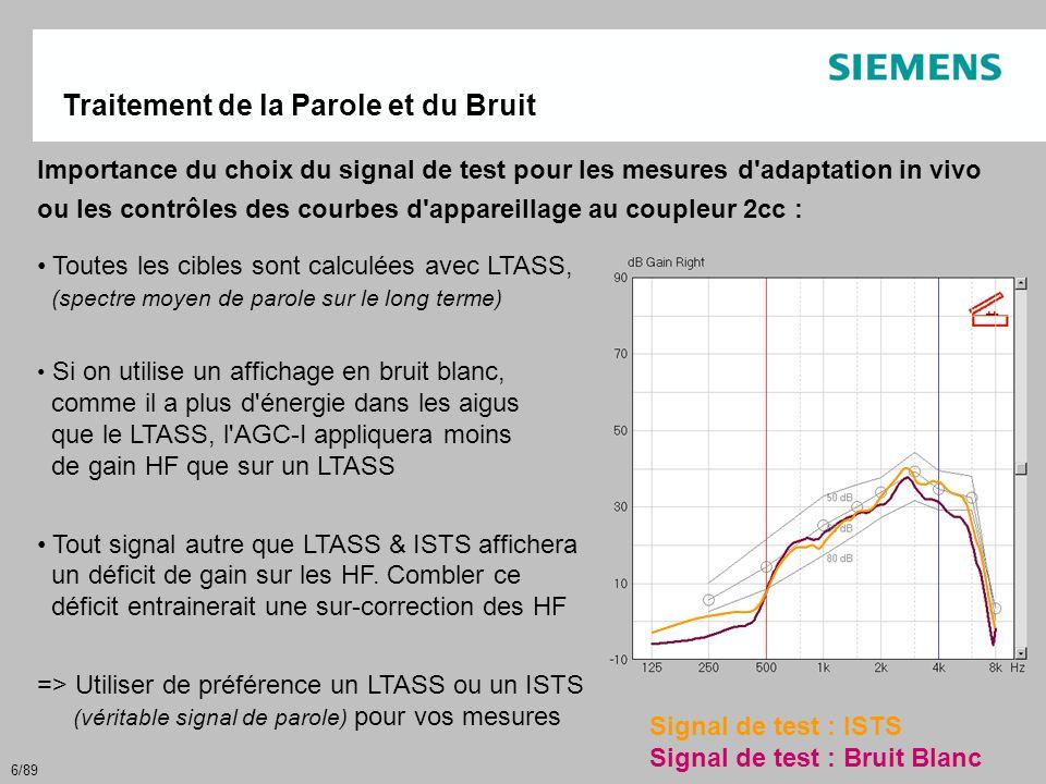 77/89 Bruit Fréquence Gain > 20 canaux FFT Réduction de bruit par canal