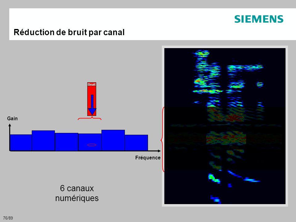 76/89 Bruit Réduction de bruit par canal Gain 6 canaux numériques Fréquence
