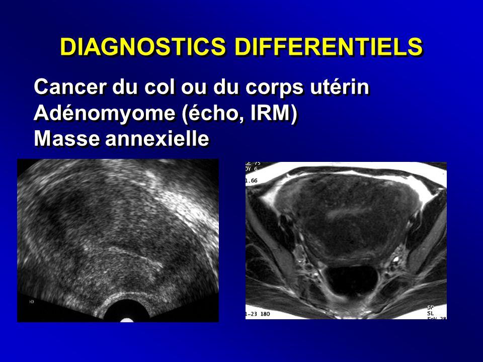 DIAGNOSTICS DIFFERENTIELS Cancer du col ou du corps utérin Adénomyome (écho, IRM) Masse annexielle Cancer du col ou du corps utérin Adénomyome (écho, IRM) Masse annexielle
