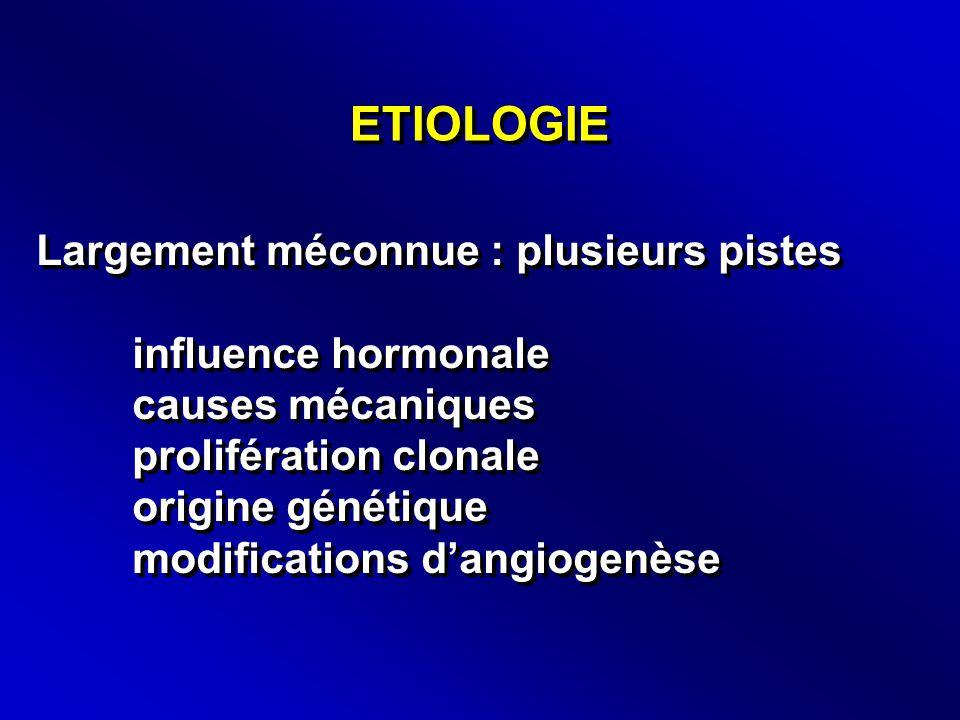 ETIOLOGIE Largement méconnue : plusieurs pistes influence hormonale causes mécaniques prolifération clonale origine génétique modifications d'angiogenèse Largement méconnue : plusieurs pistes influence hormonale causes mécaniques prolifération clonale origine génétique modifications d'angiogenèse