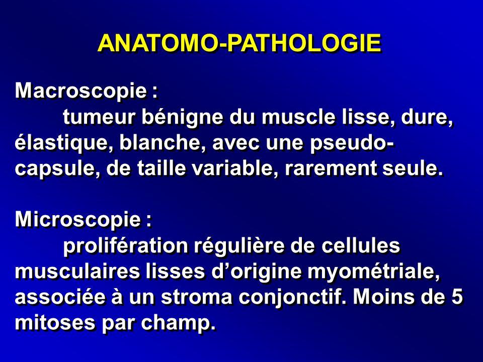 ANATOMO-PATHOLOGIE Macroscopie : tumeur bénigne du muscle lisse, dure, élastique, blanche, avec une pseudo- capsule, de taille variable, rarement seule.