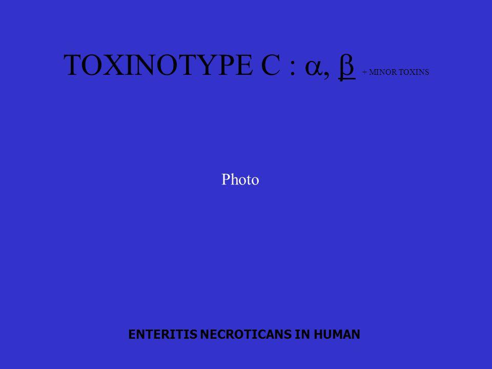 TOXINOTYPE C :  + MINOR TOXINS ENTERITIS NECROTICANS IN HUMAN Photo