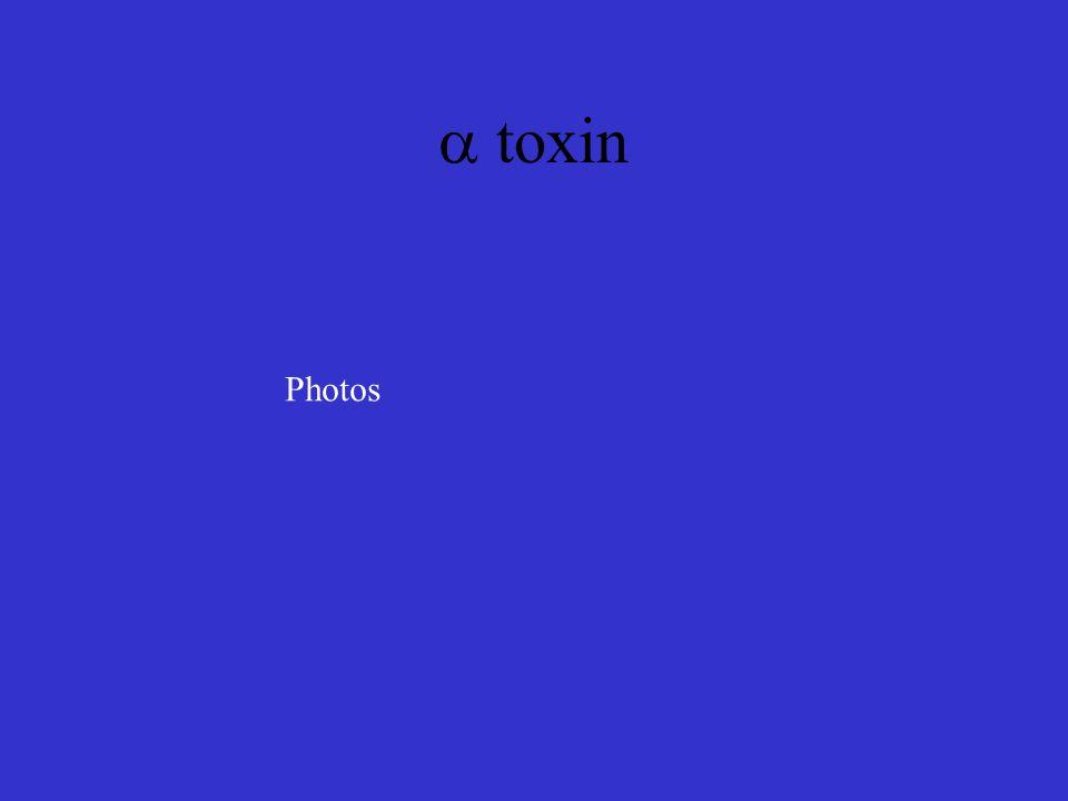  toxin Photos