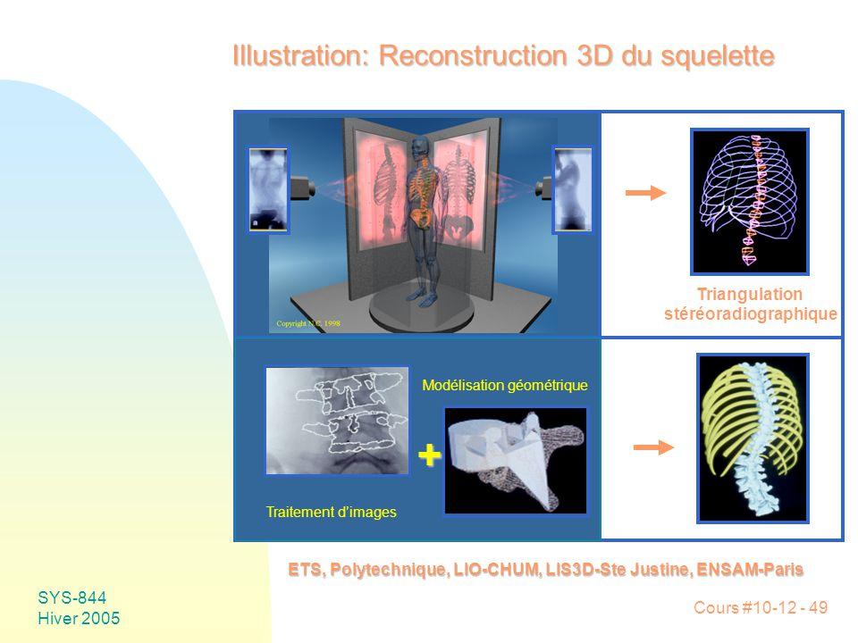 Cours #10-12 - 49 SYS-844 Hiver 2005 Illustration: Reconstruction 3D du squelette ETS, Polytechnique, LIO-CHUM, LIS3D-Ste Justine, ENSAM-Paris Triangulation stéréoradiographique Traitement d'images Modélisation géométrique +