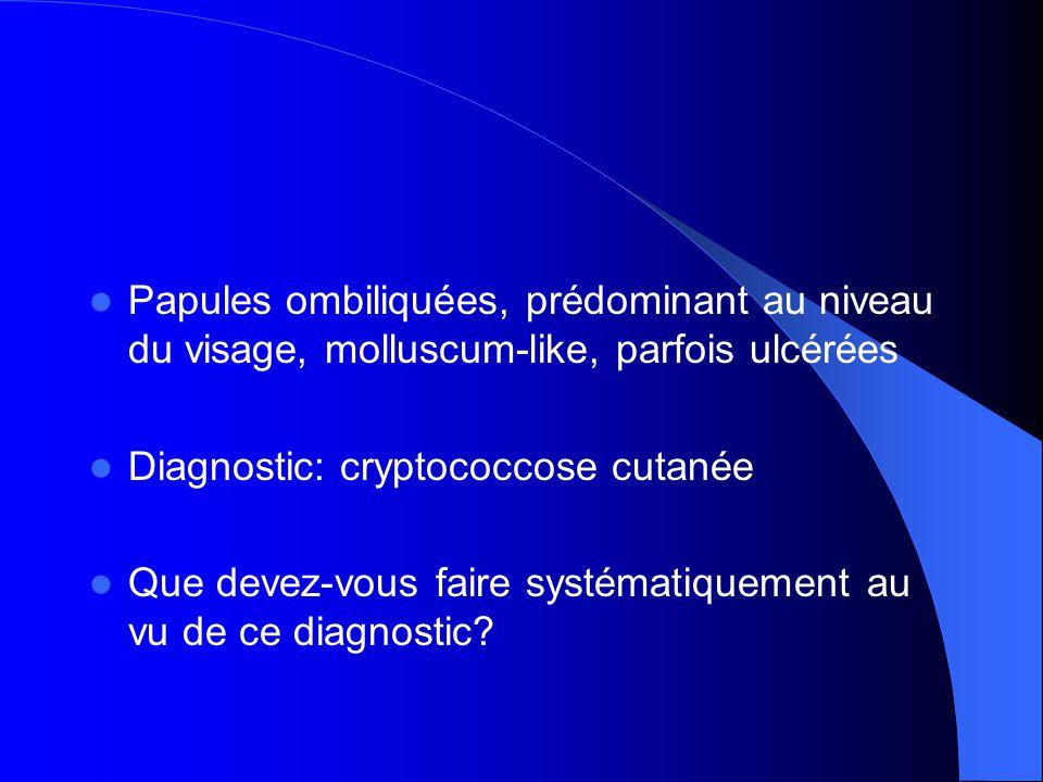  Papules ombiliquées, prédominant au niveau du visage, molluscum-like, parfois ulcérées  Diagnostic: cryptococcose cutanée  Que devez-vous faire systématiquement au vu de ce diagnostic?