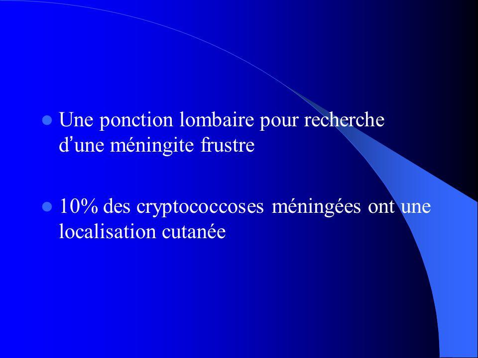  Une ponction lombaire pour recherche d ' une méningite frustre  10% des cryptococcoses méningées ont une localisation cutanée
