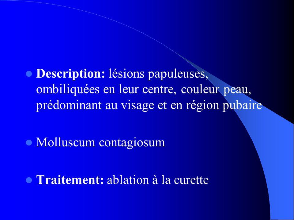  Description: lésions papuleuses, ombiliquées en leur centre, couleur peau, prédominant au visage et en région pubaire  Molluscum contagiosum  Traitement: ablation à la curette