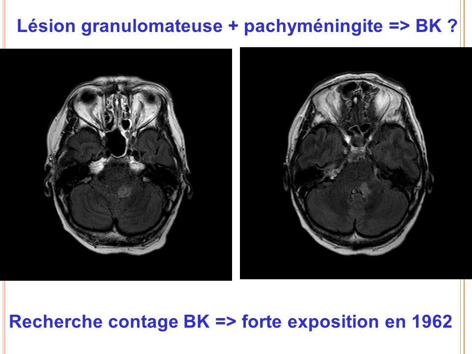 Lésion granulomateuse + pachyméningite => BK ? Recherche contage BK => forte exposition en 1962