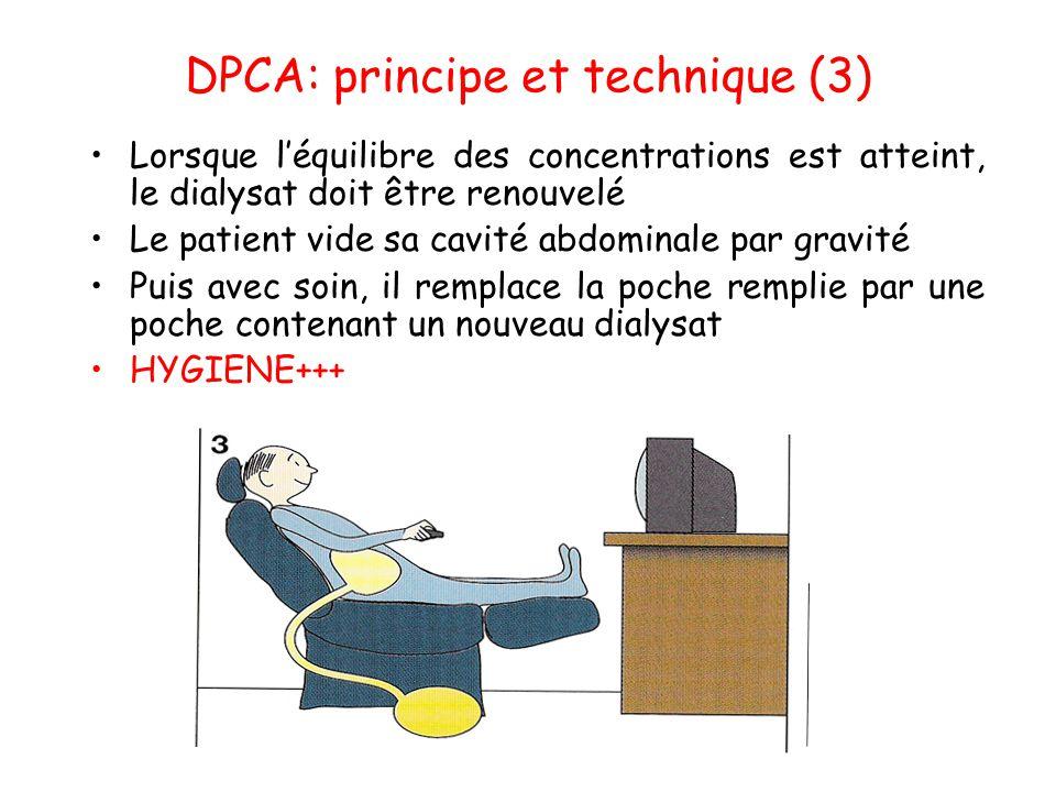 DPCA: principe et technique (3) •Lorsque l'équilibre des concentrations est atteint, le dialysat doit être renouvelé •Le patient vide sa cavité abdomi