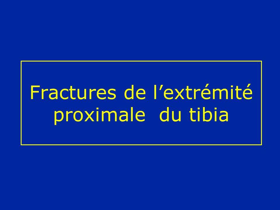 Fractures de l'extrémité proximale du tibia