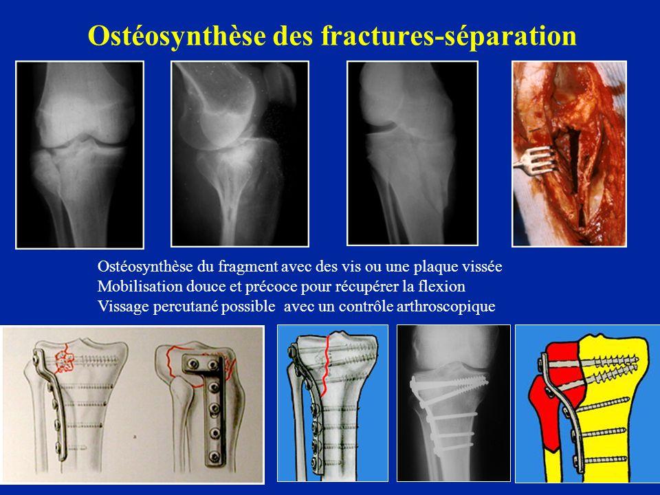 Ostéosynthèse des fractures-séparation Ostéosynthèse du fragment avec des vis ou une plaque vissée Mobilisation douce et précoce pour récupérer la fle