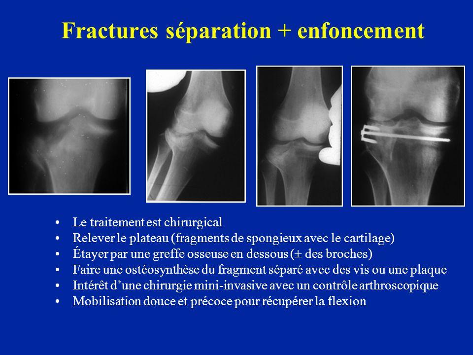 Fractures séparation + enfoncement • •Le traitement est chirurgical • •Relever le plateau (fragments de spongieux avec le cartilage) • •Étayer par une