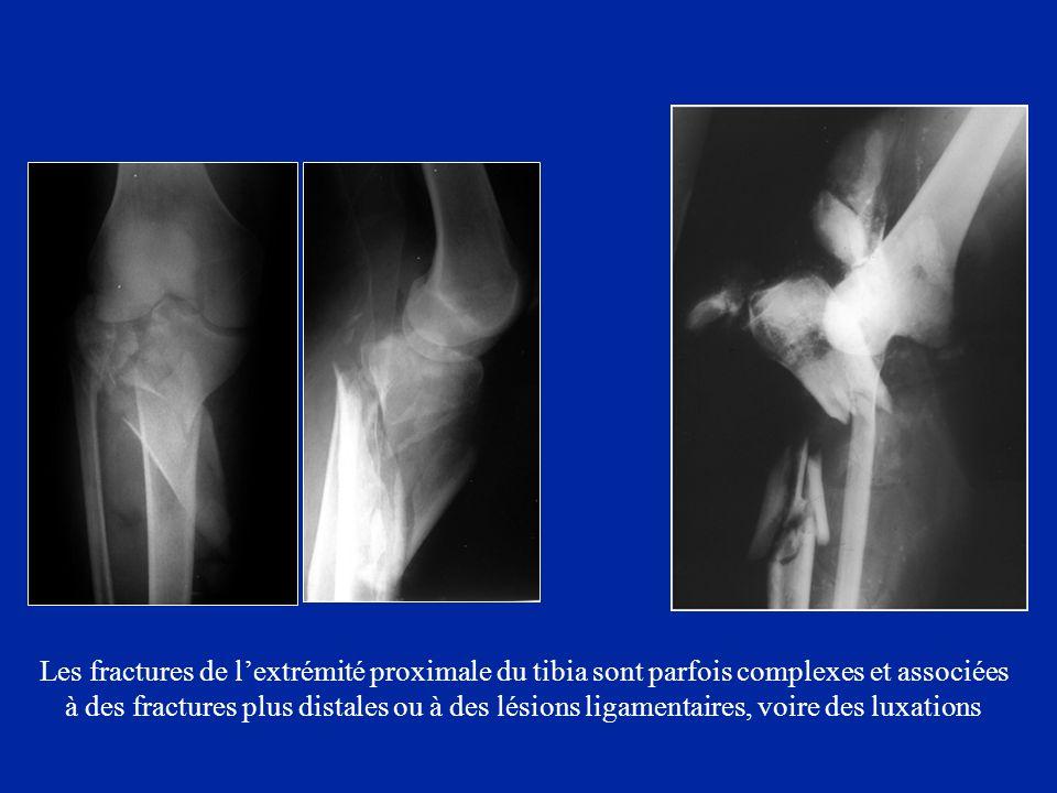 Les fractures de l'extrémité proximale du tibia sont parfois complexes et associées à des fractures plus distales ou à des lésions ligamentaires, voir