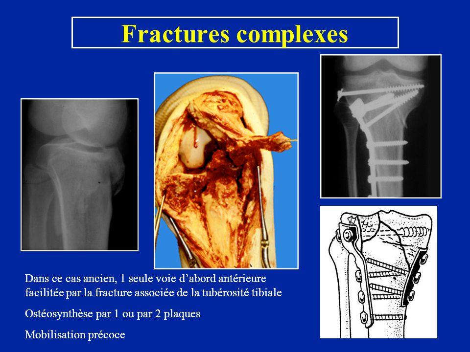 Fractures complexes Dans ce cas ancien, 1 seule voie d'abord antérieure facilitée par la fracture associée de la tubérosité tibiale Ostéosynthèse par