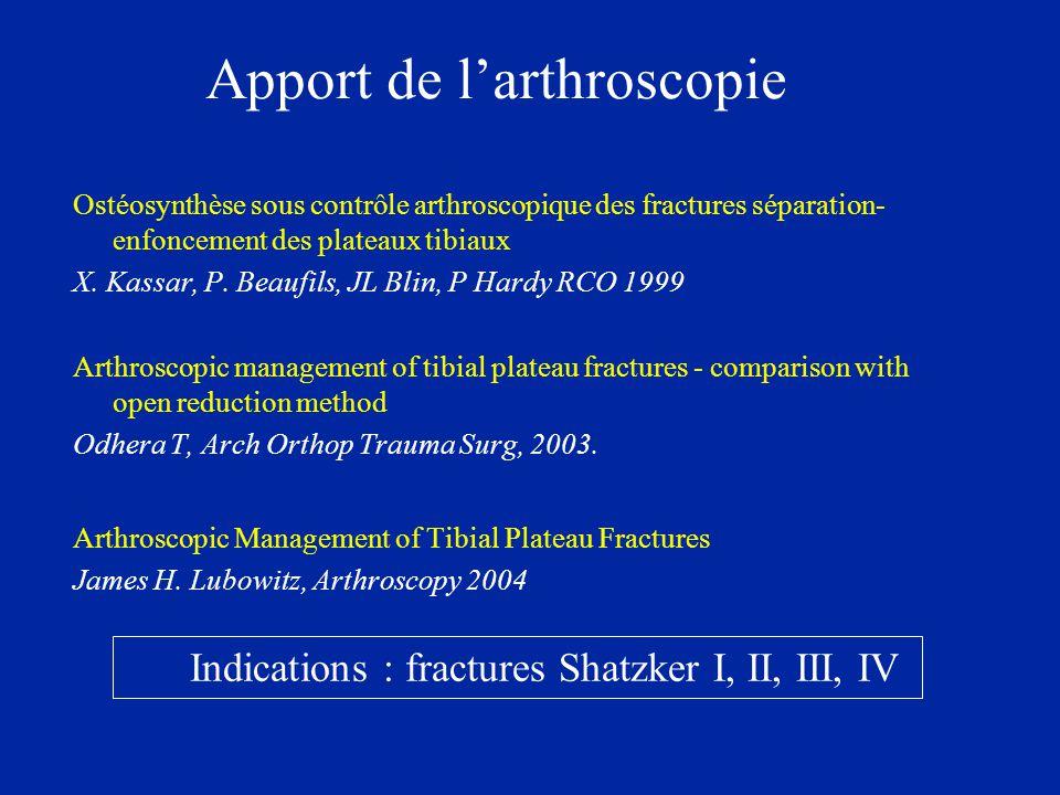 Apport de l'arthroscopie Ostéosynthèse sous contrôle arthroscopique des fractures séparation- enfoncement des plateaux tibiaux X. Kassar, P. Beaufils,