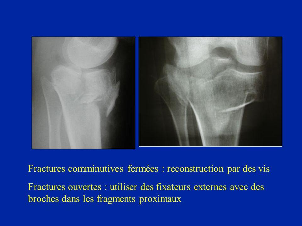 Fractures comminutives fermées : reconstruction par des vis Fractures ouvertes : utiliser des fixateurs externes avec des broches dans les fragments p