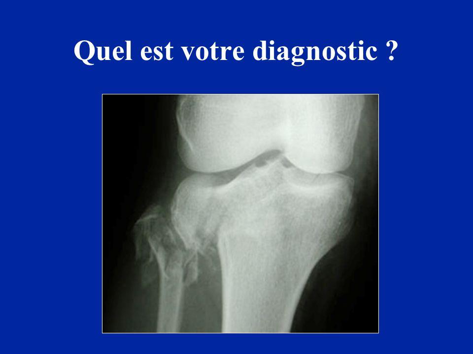 Quel est votre diagnostic ?